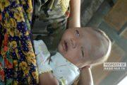Duh! Bayi di Rembang Ini Alami Pendarahan Dalam Pada Otak