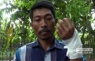 Bertarung Dengan Ular Pyton, 'Pawang Ular' di Pancur Nyaris Kehilangan Tangannya